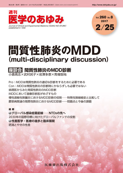間質性肺炎のMDD(multi-disciplinary discussion)