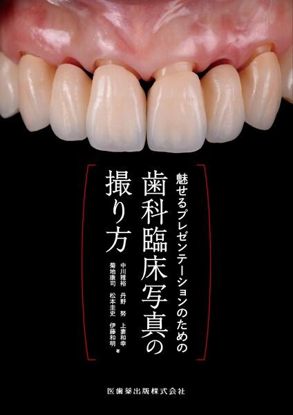 歯科臨床写真の撮り方