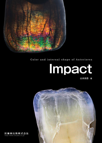 Impact Color and internal shape of Anteriores