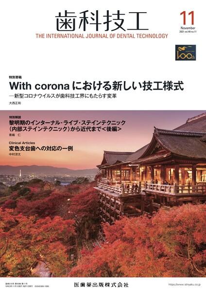 With coronaにおける新しい技工様式
