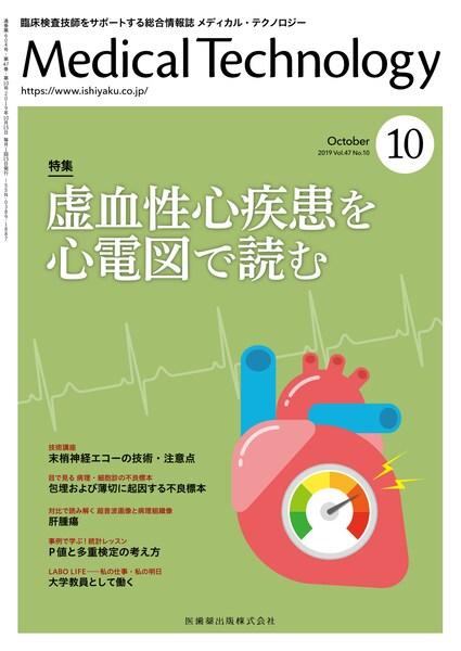 虚血性心疾患を心電図で読む